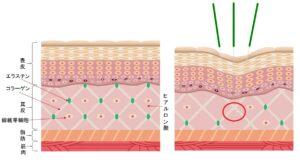 美容鍼としてお顔に針を刺すことで身体の中ではどのようなことが起きているのでしょうか?針を刺し、身体をわざと木津つけることにより傷の早期回復を促し、いち早くターンオーバーさせることによってアンチエイジング効果を期待します。